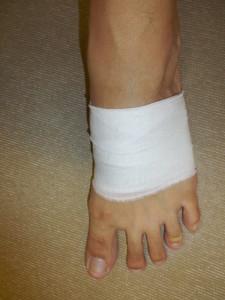 足の甲包帯固定