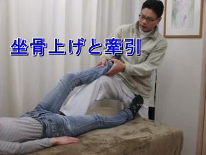 股関節牽引と坐骨上げ