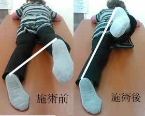 右の股関節が上がりやすくなっています