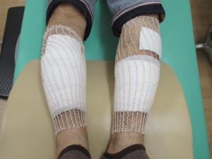 包帯処置下腿打撲
