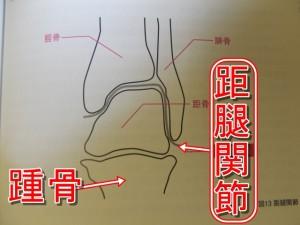 足の関節外くるぶしのズレ