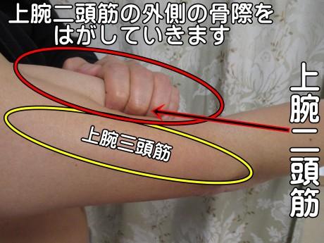 上腕二頭筋の外側の骨際をはがしていきます