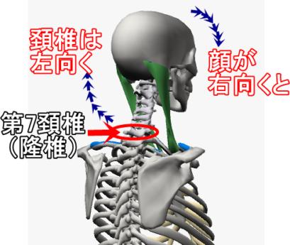 顔が右向くと第七頚椎は左向く