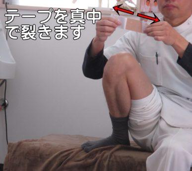 膝のテーピング