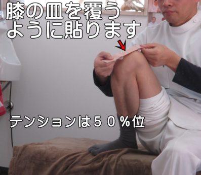 膝のキネシオテーピング