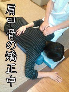 肩甲骨の矯正中