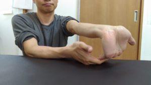 親指以外の手の平をしっかり伸ばされます。指先が前腕と平行になるくらいまで頑張りましょう。最初は直角位かもしれませんが、毎日することで徐々に伸びてきます。