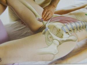 大腰筋の触診