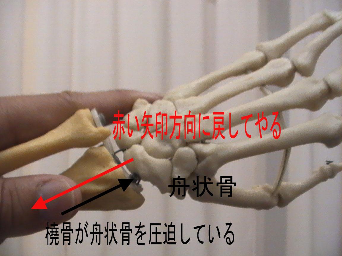 尺屈状態になっているので橈屈へ変位させる