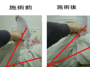 大腿四頭筋太ももビフォアーアフター