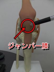 ジャンパー膝
