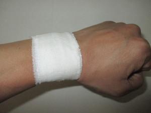 手首の包帯固定