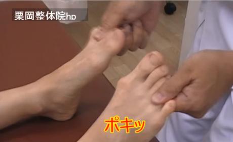 足の指のポキポキ音