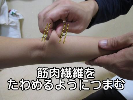 筋肉繊維をたわめるようにつまむ