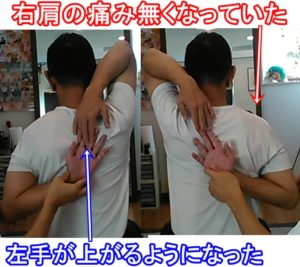 テニス肩の可動域改善
