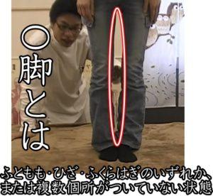 O脚の状態