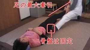 膝を曲げた状態で物足りない時は、術者と患者の膝を同時に伸ばしていき骨盤を固定して体幹がズレないように、足首から最大の力で足一本根こそぎ牽引します。骨盤を固定することでしびれが出にくい状態になっています。