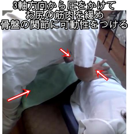 三軸方向から圧をかけてお尻の筋肉を緩め骨盤の関節に可動性をつける
