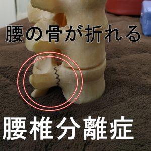 腰の骨が折れる腰椎分離症腰椎すべり症