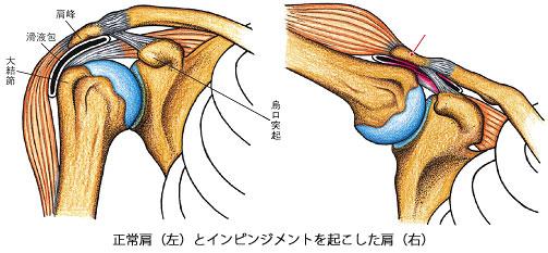 「図で説く整形外科疾患-外来診療のヒント」 寺山 和雄、堀尾 重治著 医学書院より転写