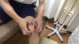 膝蓋骨周囲のはがしお皿