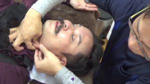 首筋の筋膜を伸ばす
